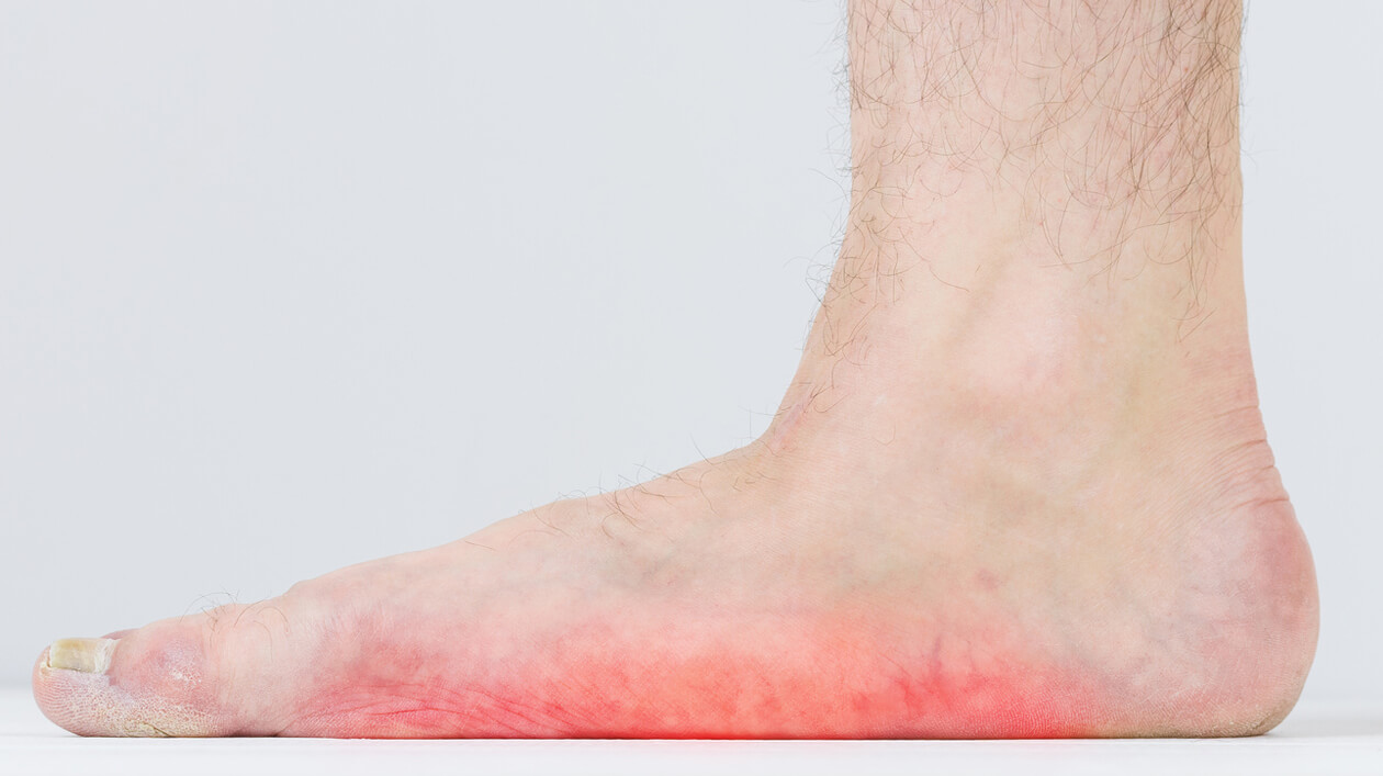 How to Keep Flat Feet from Getting Worse